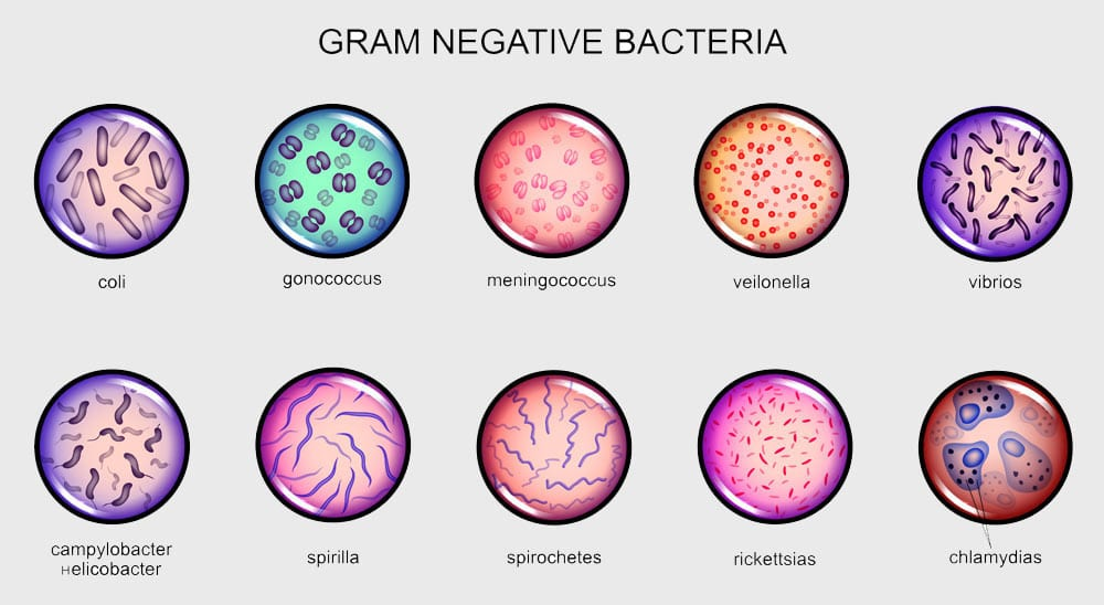 Gram-negative-Bacteria. Environmental Testing from U.S. Micro Solutions